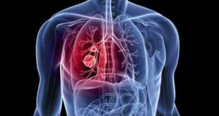 شعور بألم في الظهر قد ينذر بأمراض سرطانية سريعة الانتشار